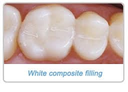 tooth-coloured-composite-filling