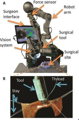 Robotic_arm_soft_tissue_operation
