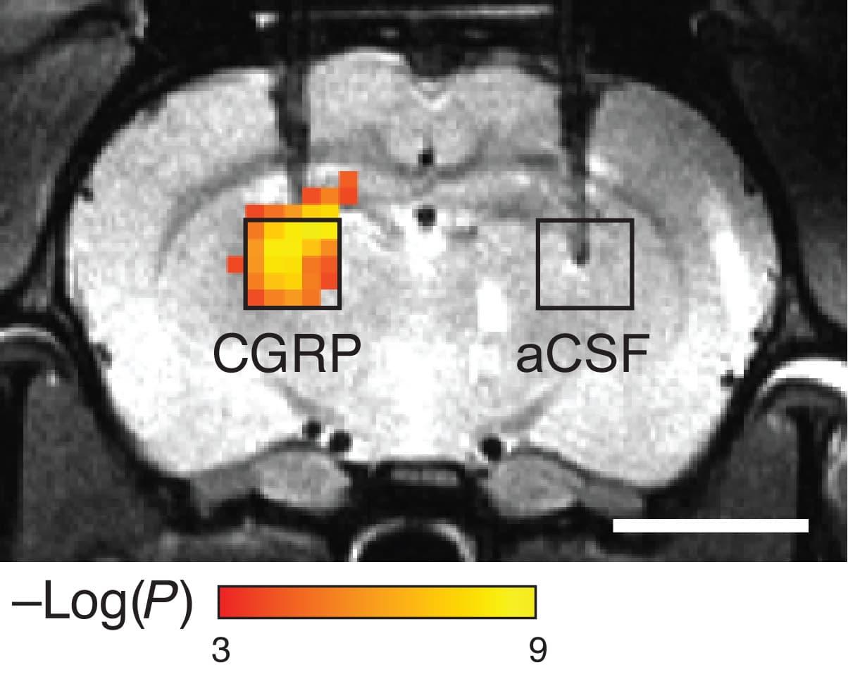 MIT_MRI_Imaging