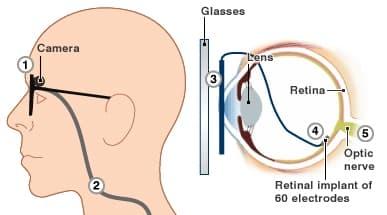 artificial-retina-bionic-eye